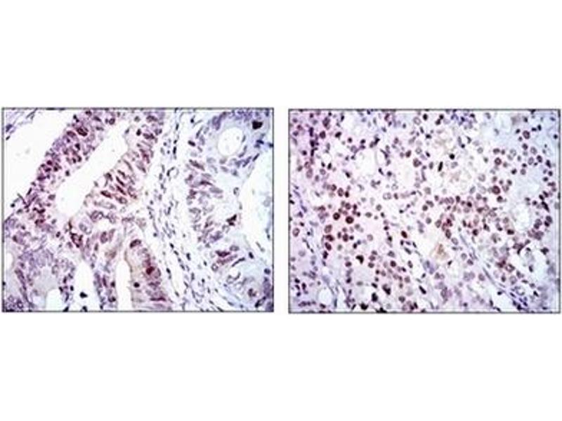Immunohistochemistry (IHC) image for anti-CDK2 antibody (Cyclin-Dependent Kinase 2) (ABIN1106645)