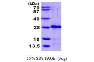 Image no. 1 for Calcium And Integrin Binding Family Member 2 (CIB2) (AA 1-187) protein (His tag) (ABIN667347)