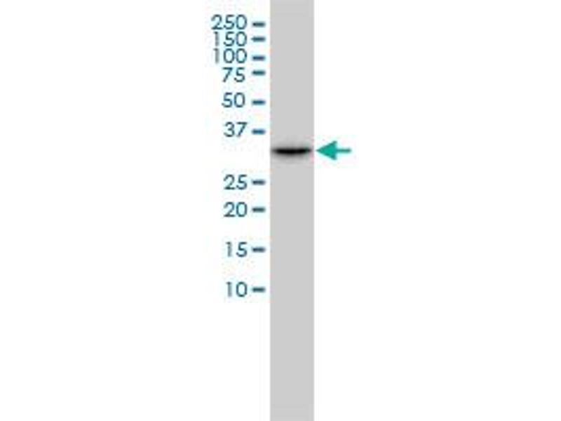 Western Blotting (WB) image for anti-Cyclin-Dependent Kinase 2 (CDK2) (AA 211-298), (partial) antibody (ABIN560288)