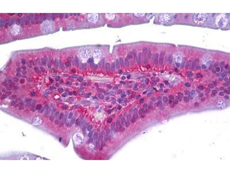 Immunohistochemistry (IHC) image for anti-RAC1 antibody (ABIN962719)