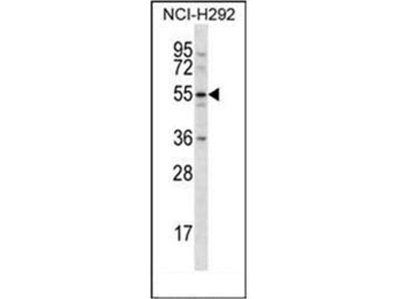 Western Blotting (WB) image for anti-C-Type Lectin Domain Family 18, Member A (CLEC18A) (AA 345-375), (C-Term) antibody (ABIN951563)