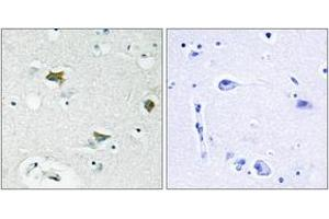 Immunohistochemistry (IHC) image for anti-BCL2-Associated Agonist of Cell Death (BAD) (AA 61-110) antibody (ABIN1532539)
