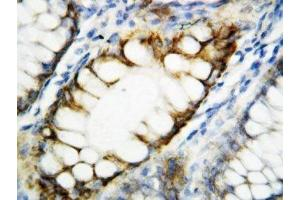 Image no. 1 for anti-rho-Associated, Coiled-Coil Containing Protein Kinase 2 (ROCK2) (N-Term) antibody (ABIN3032472)