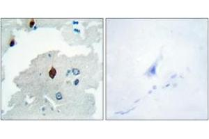 Image no. 2 for anti-Pituitary Tumor-Transforming 1 (PTTG1) (AA 116-165) antibody (ABIN1533781)