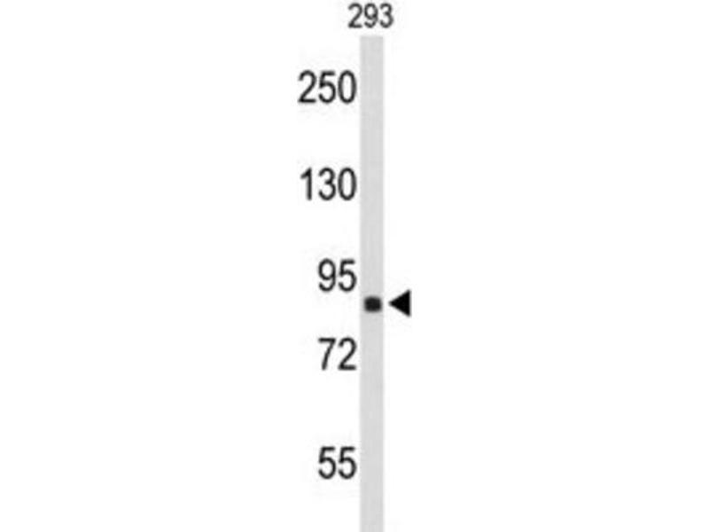 Western Blotting (WB) image for anti-Transportin 1 (TNPO1) antibody (ABIN3000887)