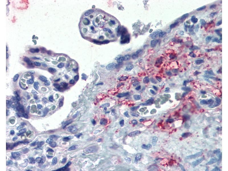Immunohistochemistry (IHC) image for anti-Endoplasmic Reticulum Protein 44 (ERP44) (Internal Region) antibody (ABIN625848)