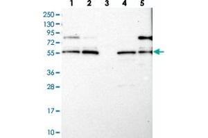 Image no. 2 for anti-Leucine-Rich Repeats and Calponin Homology (CH) Domain Containing 4 (LRCH4) antibody (ABIN5582699)