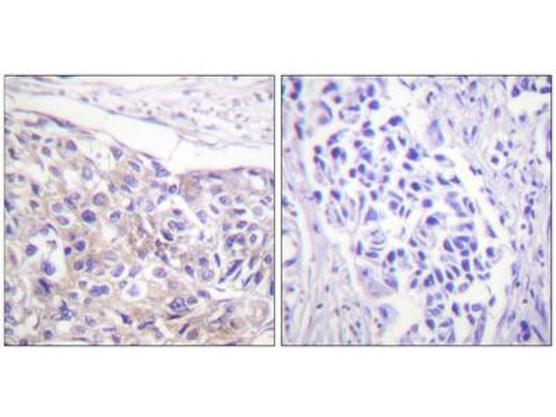 Immunohistochemistry (IHC) image for anti-Ribosomal Protein S6 Kinase, 90kDa, Polypeptide 3 (RPS6KA3) (pThr573) antibody (ABIN1847290)