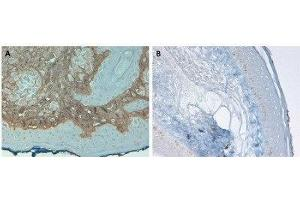 Immunohistochemistry (IHC) image for anti-Collagen, Type I, alpha 1 (COL1A1) antibody (HRP) (ABIN4299599)