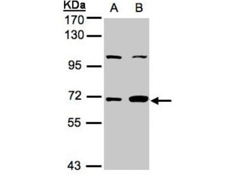 Western Blotting (WB) image for anti-Guanylate Binding Protein 1, Interferon-Inducible (GBP1) (Center) antibody (ABIN441559)