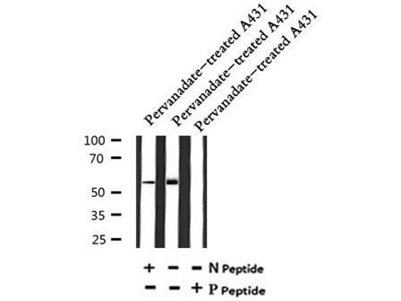 Image no. 3 for anti-Neural Wiskott-Aldrich syndrome protein (WASL) (pTyr256) antibody (ABIN6269481)