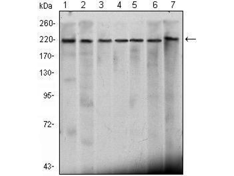 Western Blotting (WB) image for anti-Chromodomain Helicase DNA Binding Protein 3 (CHD3) antibody (ABIN1106677)