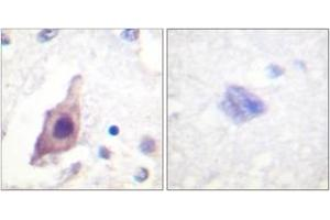 Image no. 1 for anti-Cell Division Cycle 25 Homolog B (S. Pombe) (CDC25B) (AA 319-368) antibody (ABIN1532566)