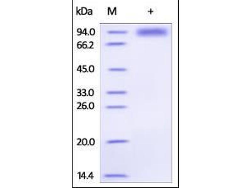 SDS-PAGE (SDS) image for Interleukin 1 Receptor-Like 1 (IL1RL1) (AA 19-328) (Active) protein (Fc Tag) (ABIN2181368)