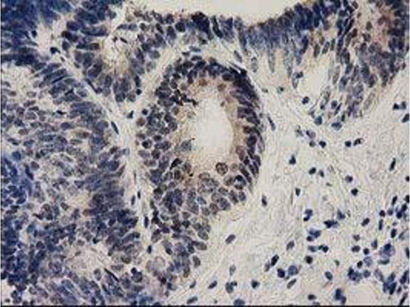 Immunohistochemistry (IHC) image for anti-Ephrin A2 (EFNA2) antibody (ABIN2453845)