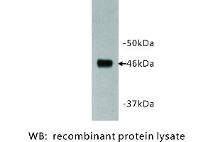 Image no. 1 for anti-Dachsous 1 (Drosophila) (DCHS1) antibody (ABIN1112924)