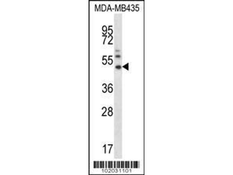 Western Blotting (WB) image for anti-MMP16 antibody (Matrix Metallopeptidase 16 (Membrane-inserted)) (AA 154-183) (ABIN390140)