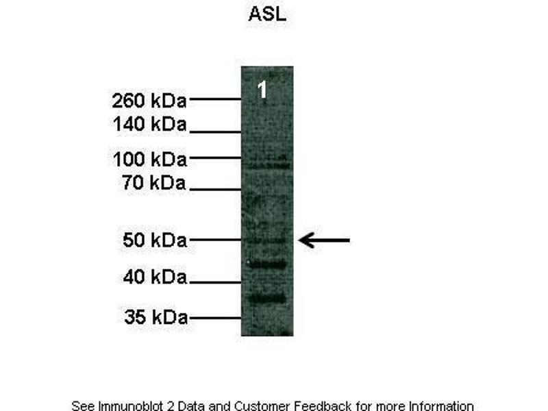 Western Blotting (WB) image for anti-Argininosuccinate Lyase (ASL) (Middle Region) antibody (ABIN2776928)