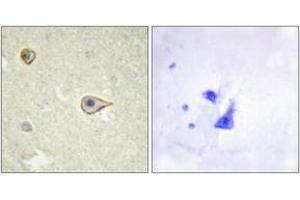 Image no. 2 for anti-Cytochrome P450, Family 19, Subfamily A, Polypeptide 1 (CYP19A1) (AA 221-270) antibody (ABIN1534373)