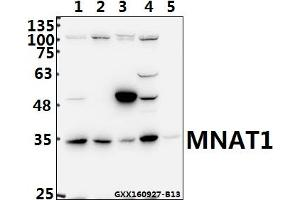 Image no. 1 for anti-Menage A Trois Homolog 1, Cyclin H Assembly Factor (Xenopus Laevis) (MNAT1) (AA 100-150) antibody (ABIN6712428)