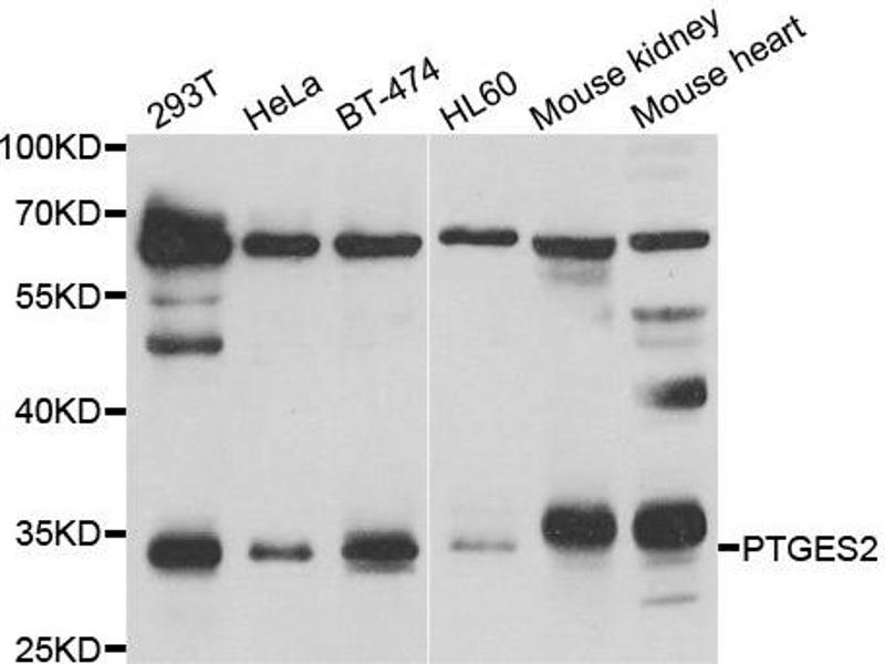 Western Blotting (WB) image for anti-Prostaglandin E Synthase 2 (PTGES2) antibody (ABIN2564800)