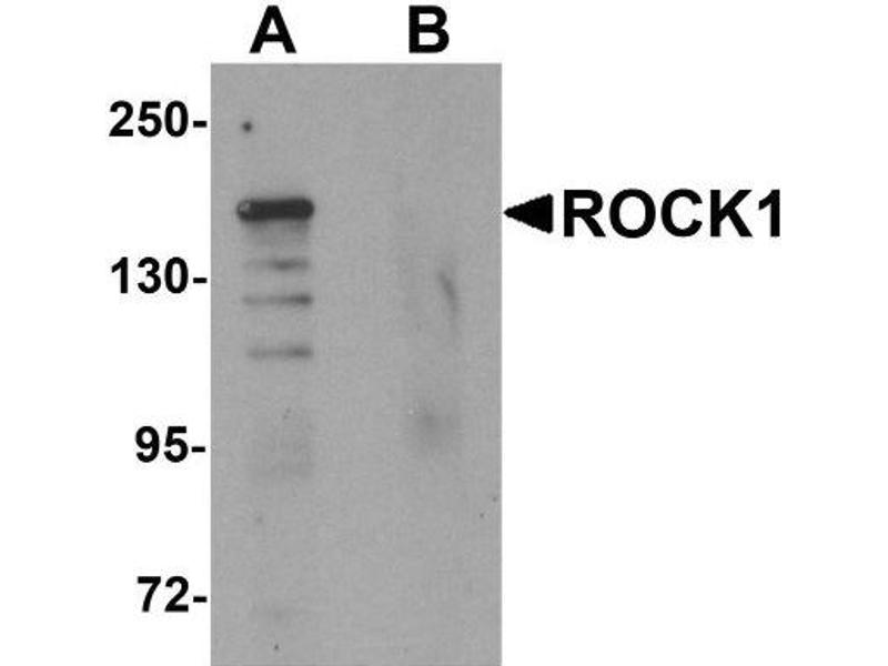 Western Blotting (WB) image for anti-ROCK1 antibody (rho-Associated, Coiled-Coil Containing Protein Kinase 1) (N-Term) (ABIN4350897)