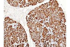 Image no. 2 for anti-Regenerating Islet-Derived 1 beta (REG1B) (AA 1-166) antibody (ABIN1999007)