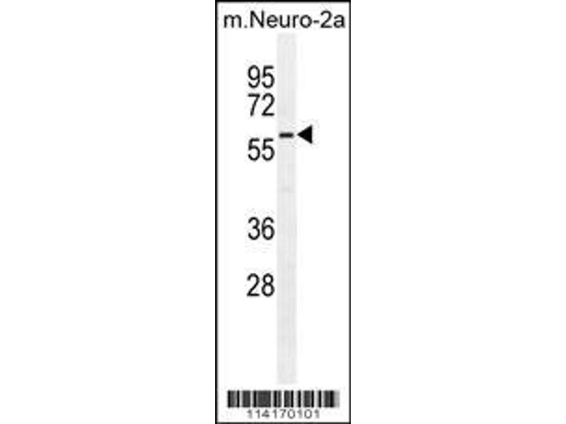 Western Blotting (WB) image for anti-Poly (ADP-Ribose) Polymerase Family, Member 6 (PARP6) (AA 508-538), (C-Term) antibody (ABIN390248)