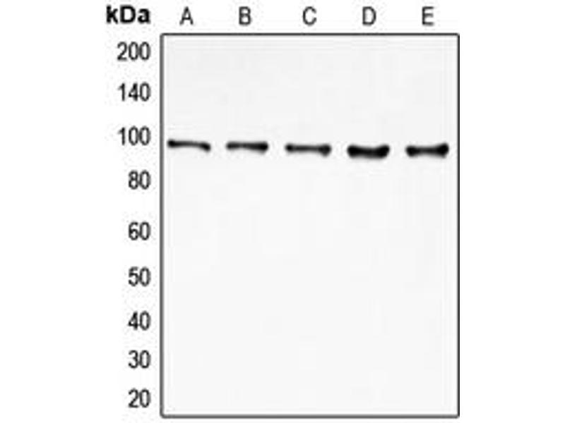 Image no. 3 for anti-Eukaryotic Translation Initiation Factor 4 gamma 2 (EIF4G2) (N-Term) antibody (ABIN2707492)