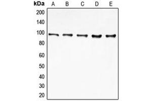 Image no. 3 for anti-Eukaryotic Translation Initiation Factor 4 gamma 2 (EIF4G2) (N-Term) antibody (ABIN2707492)
