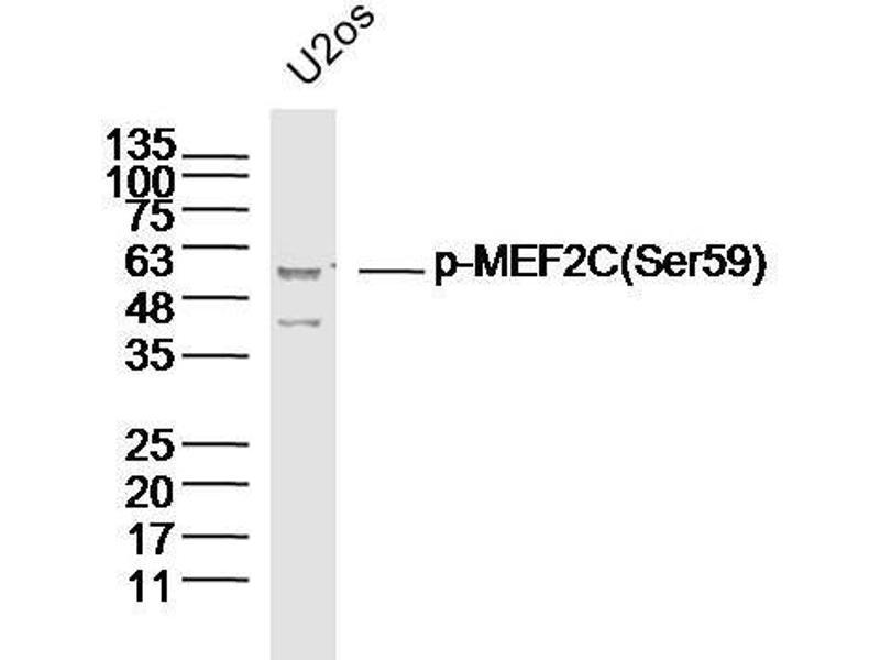 Image no. 3 for anti-Myocyte Enhancer Factor 2C (MEF2C) (pSer59) antibody (ABIN710171)