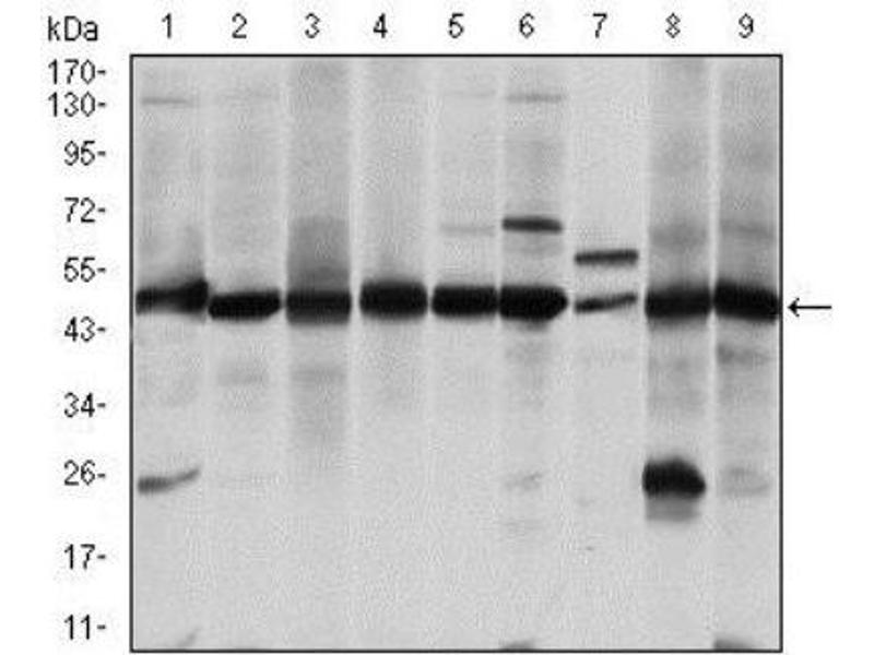 Western Blotting (WB) image for anti-Argininosuccinate Synthase 1 (ASS1) antibody (ABIN4281471)