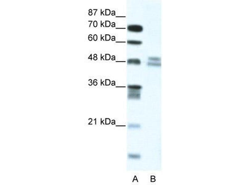 Western Blotting (WB) image for anti-Thyroid Hormone Receptor Interactor 13 (TRIP13) (N-Term) antibody (ABIN183210)