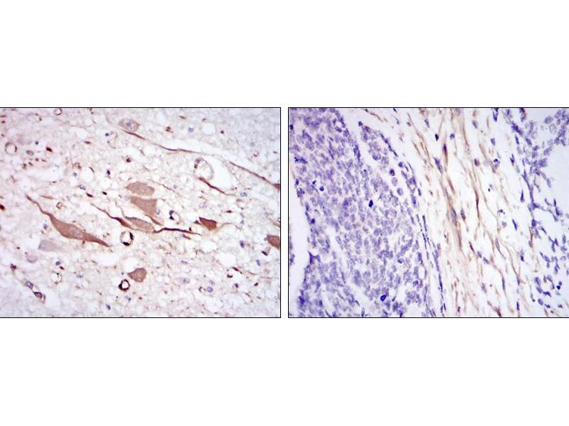 Immunohistochemistry (IHC) image for anti-HSPB1 antibody (Heat Shock 27kDa Protein 1) (ABIN969199)