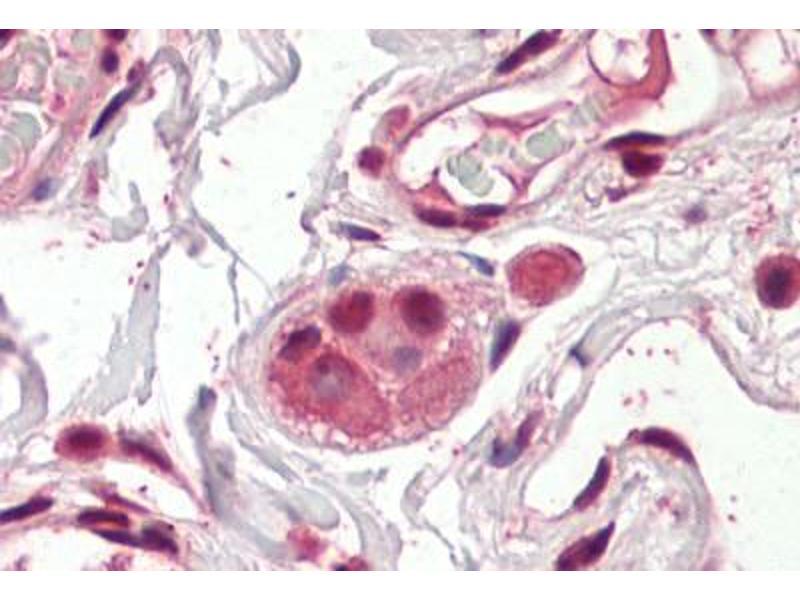 image for anti-Amino-terminal Enhancer of Split (AES) (AA 79-91) antibody (ABIN1494461)