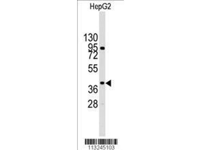 Western Blotting (WB) image for anti-p38 Antikörper (MAP kinase p38) (AA 301-330) (ABIN391332)