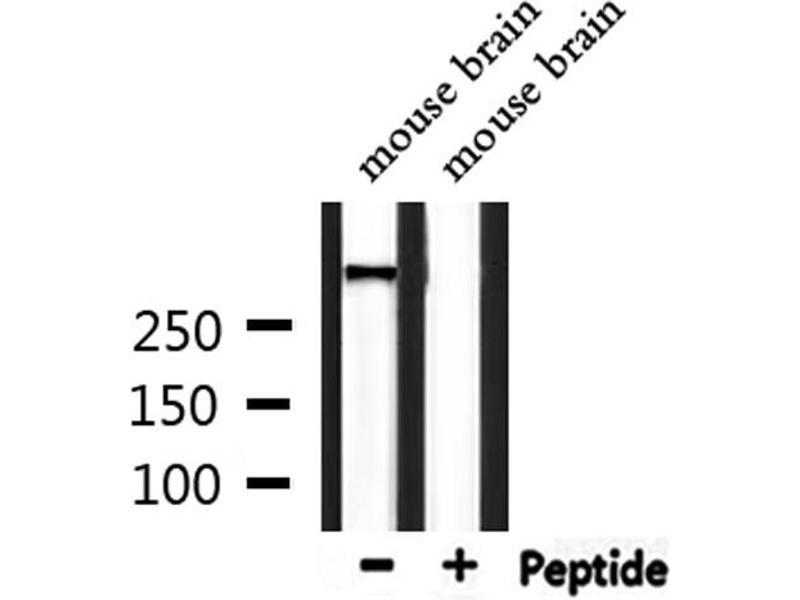 Western Blotting (WB) image for anti-Ataxia Telangiectasia Mutated (ATM) (pSer1987) antibody (ABIN6271982)