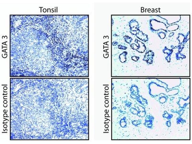 Immunohistochemistry (IHC) image for anti-GATA Binding Protein 3 (GATA3) antibody (ABIN967621)