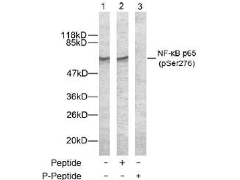 Western Blotting (WB) image for anti-Nuclear Factor-KB P65 (NFkBP65) (pSer276) antibody (ABIN257452)