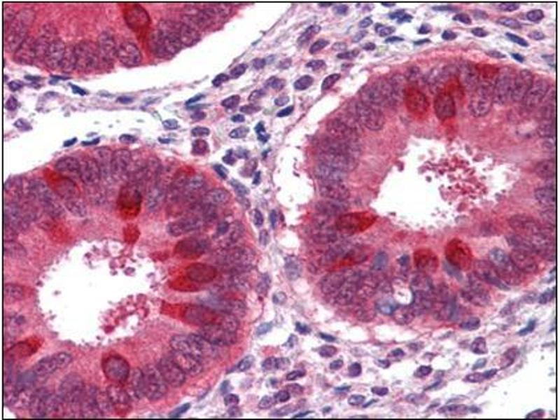 Immunohistochemistry (Paraffin-embedded Sections) (IHC (p)) image for anti-RuvB-Like 2 (E. Coli) (RUVBL2) (Ser129) antibody (ABIN615542)
