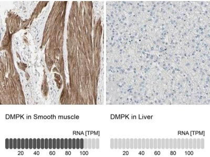 Immunohistochemistry (Paraffin-embedded Sections) (IHC (p)) image for anti-Dystrophia Myotonica-Protein Kinase (DMPK) antibody (ABIN4305449)