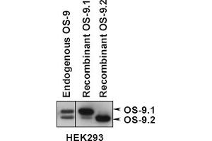 anti-Osteosarcoma Amplified 9, Endoplasmic Reticulum Lectin (OS9) (AA 300-400), (Isoform 1) antibody