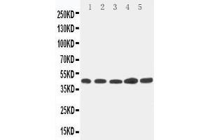 Western Blotting (WB) image for anti-Hepsin (HPN) (AA 392-410), (C-Term) antibody (ABIN3042939)