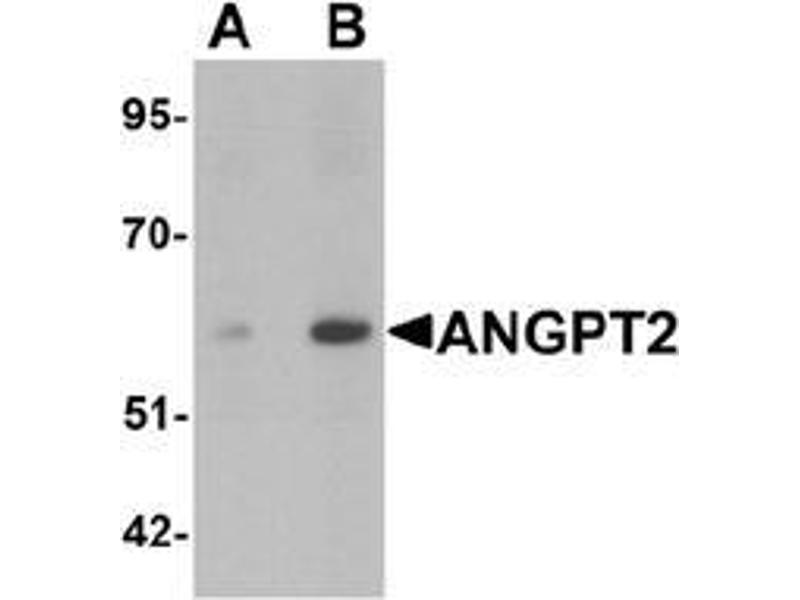 Western Blotting (WB) image for anti-Angiopoietin 2 antibody (ANGPT2) (C-Term) (ABIN1450125)