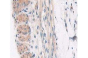Image no. 3 for anti-Collagen, Type VI, alpha 3 (COL6a3) (AA 2009-2205) antibody (ABIN5013368)