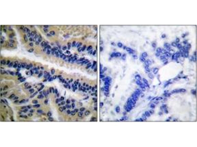Immunohistochemistry (IHC) image for anti-Caspase 9, Apoptosis-Related Cysteine Peptidase (CASP9) (Cleaved-Asp353) antibody (ABIN1536086)