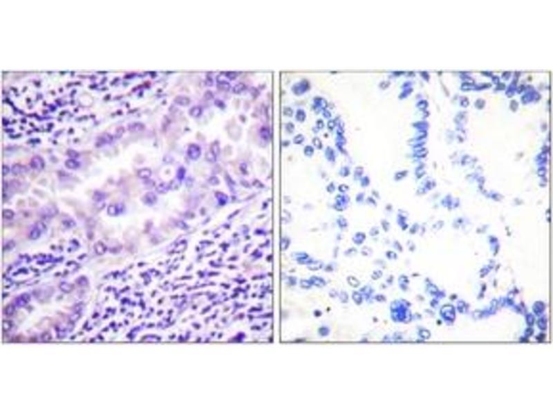 Immunohistochemistry (IHC) image for anti-Protein Phosphatase 2, Catalytic Subunit, alpha Isozyme (PPP2CA) (AA 260-309), (pTyr307) antibody (ABIN1531377)