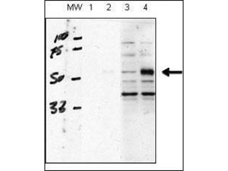 Image no. 3 for anti-Activin A Receptor Type II-Like 1 (ACVRL1) (AA 38-68), (N-Term) antibody (ABIN392241)