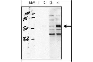image for anti-ACVRL1 antibody (Activin A Receptor Type II-Like 1) (AA 38-68) (ABIN392241)
