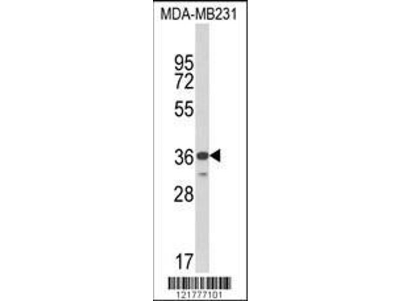 Western Blotting (WB) image for anti-MHC Class I Polypeptide-Related Sequence A (MICA) (AA 68-97), (Center) antibody (ABIN652566)